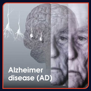 alzhiermer disease caused by excessive aluminum